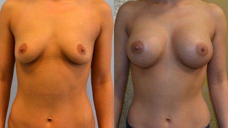 Breast Enlargement - Photo Gallery