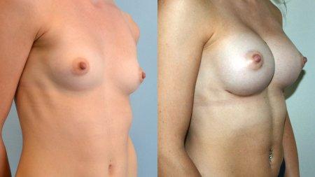 Augmentation - Brustvergrößerung