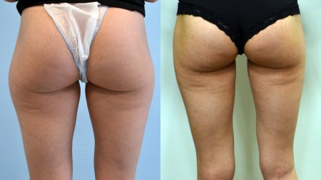 VASER Lipo® invasive liposuction