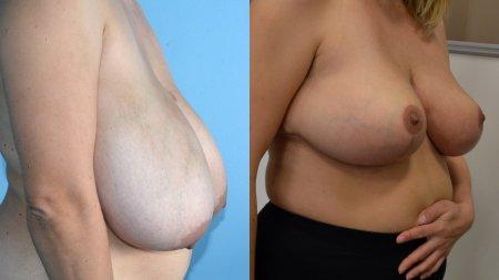 Zmenšenie prsníkov
