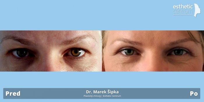 Korekcia očných viečok (blefaroplastika)