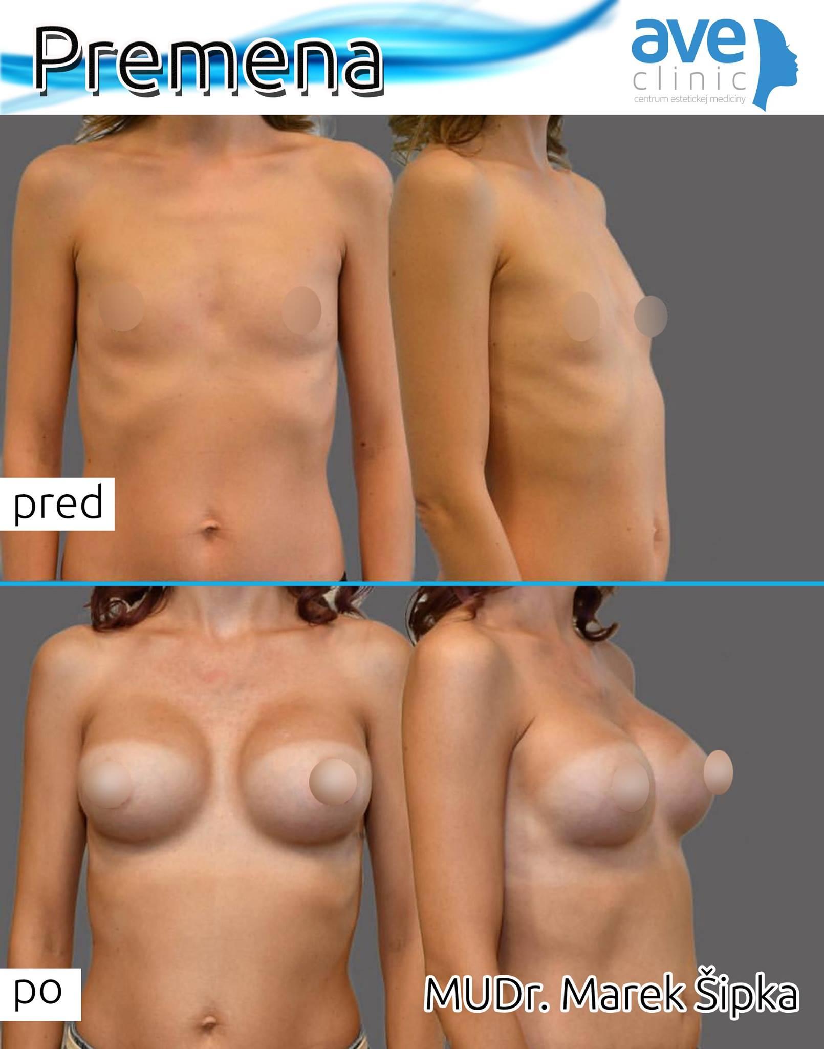 premena prsia sipka