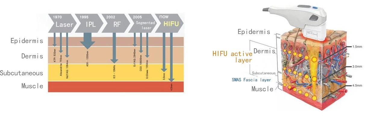 hifu obrazok 2