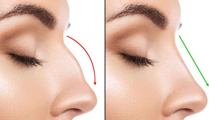 Vyhraj korekciu nosa pomocou kyseliny hyalurónovej