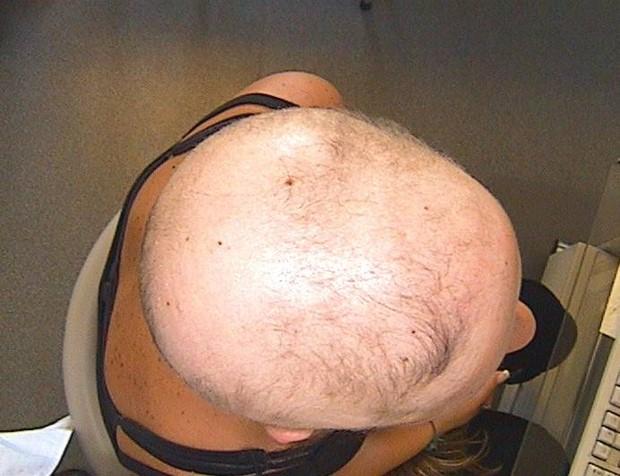 alopeciastory1