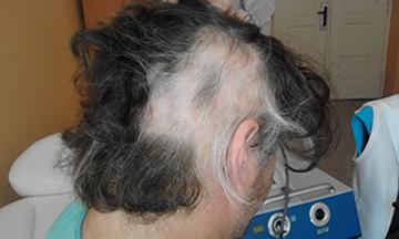 liečba straty vlasov