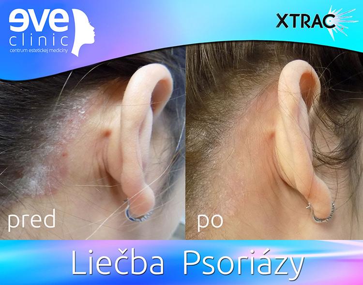 psoriaza2