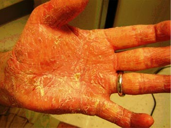 psoriaza Po 4 ošetreniach