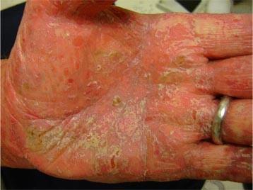 psoriaza Po 8 ošetreniach