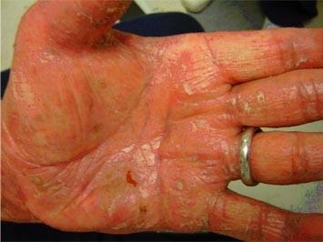 psoriaza Po 12 ošetreniach