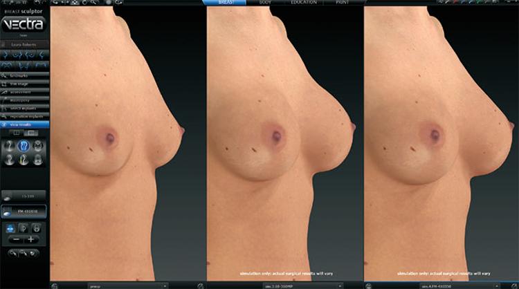 3D vizualizácia pred a po výkone: zväčšenia prsníkov (augmentácia poprsia), rôzne typy prsných implantátov