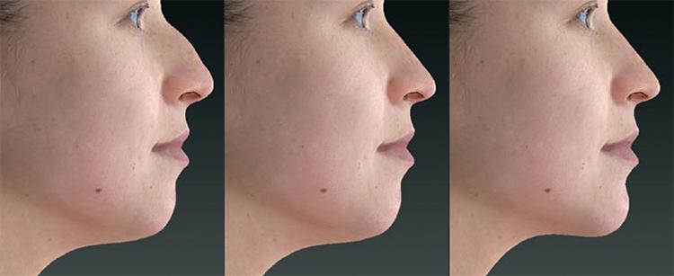 3D vizualizácia pred a po výkone: plastická operácia nosa (rinoplastika) s operáciou brady