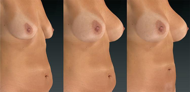 3D vizualizácia pred a po výkone: zväčšenia prsníkov (augmentácia poprsia) a odstránenie ovísajúceho brucha (abdominoplastika)