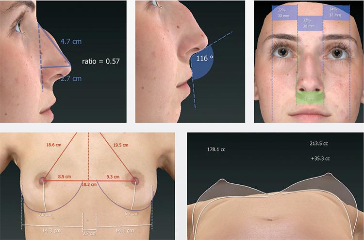 VECTRA® 3D umožňuje lekárovi získať kompletnú 3D vizualizáciu tela pacienta vo vysokej kvalite