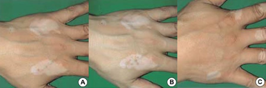 vitiligo behandlung