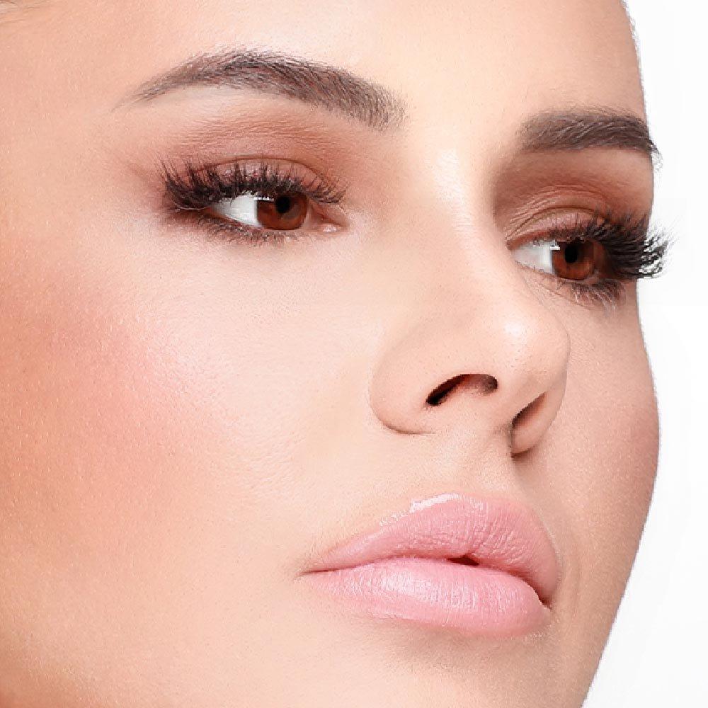 Plastická operácia nosa (rinoplastika)