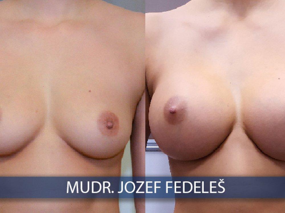 Implantáty 425 ml a 360 ml, porovnanie pred a po 6 mesiacoch, operoval MUDr. Jozef Fedeleš