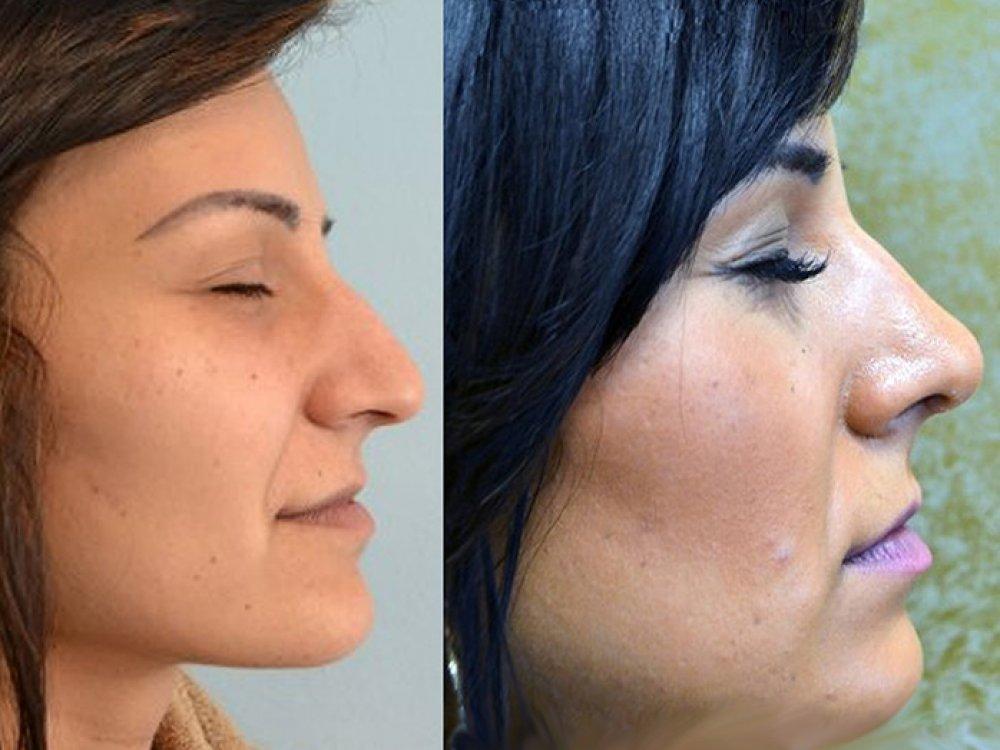 Nos je dominantná časť tváre, ktorá udáva charakteristický výraz