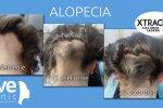 Liečba vypadávania vlasov laserom XTRAC